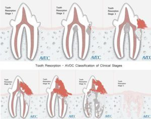Stages of Tooth Resorption