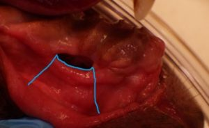 oronasal fistula repair gingival flap created