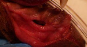 oronasal fistula repair